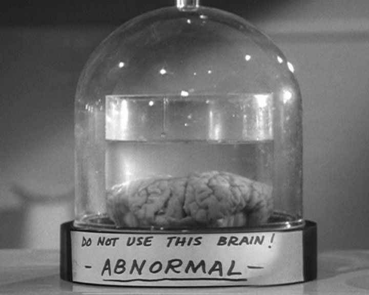 http://moviecollectoroh.com/pics_to_hotlink_on_TCM/young-frankenstein-abnormal.jpeg